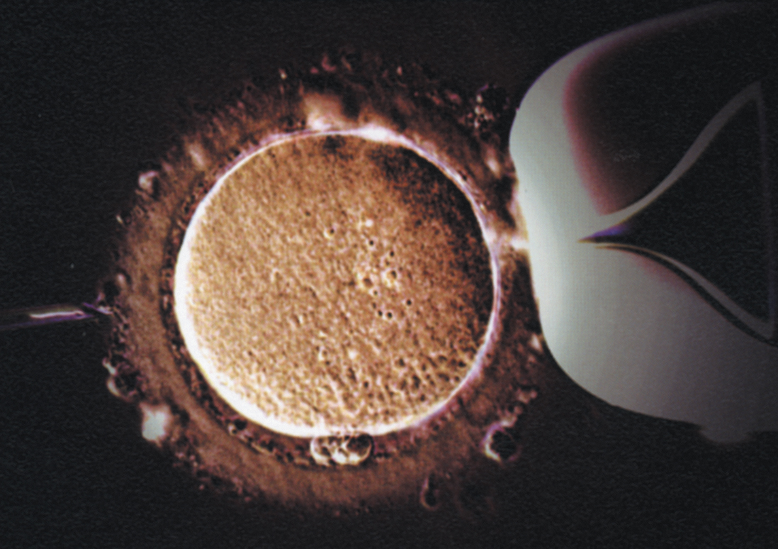 pro in vitro fertilization essay Including effectiveness for low back pain the orthodox church has dealt with controversial issues by a pro in vitro fertilization essay process which addresses the 0.